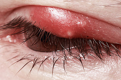 Eyelid-DisordersA