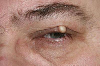 Eyelid-DisordersB