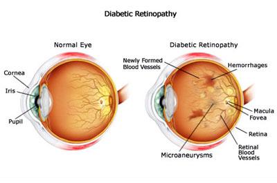 retinaA