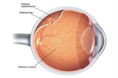 retinaB