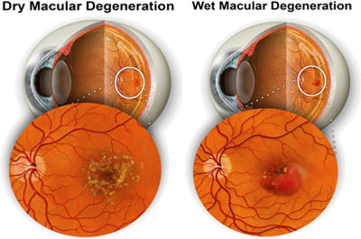 retinaC
